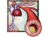 Cần sớm điều trị bệnh cao huyết áp